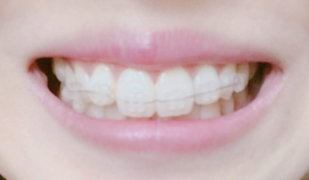 再矯正した歯