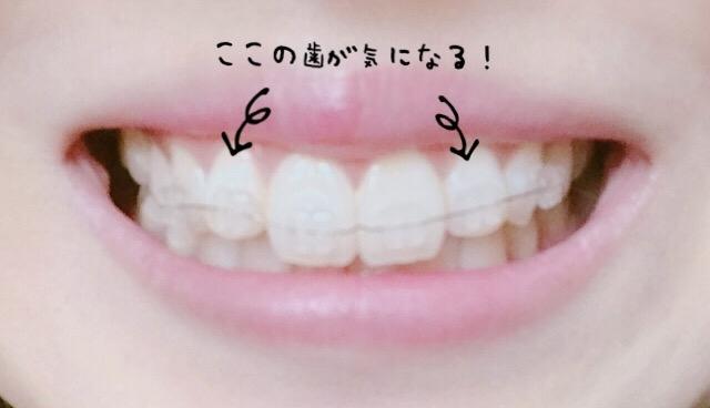再矯正した歯の気になるところ