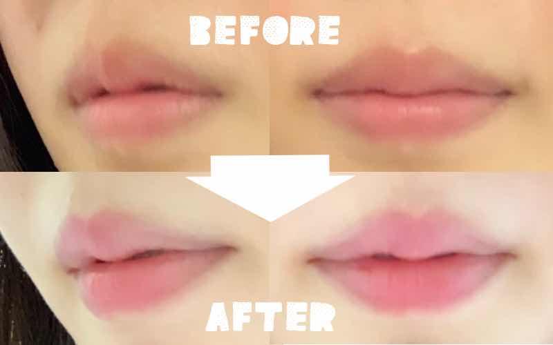 口角ボトックスと唇フィラーのビフォーアフター